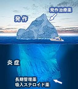 http://www.yoneda-clinic.com/asthma/img/specialities_asthma_09.jpg